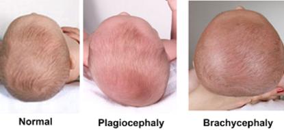 plagiocéphalie brachycéphalie